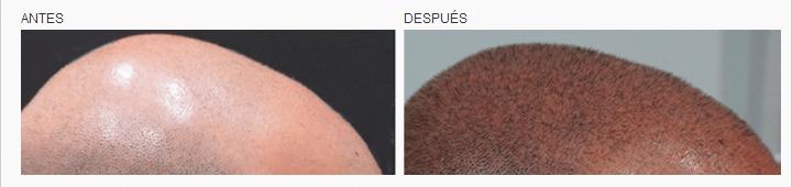 micropigmentacion capilar logia barcelona