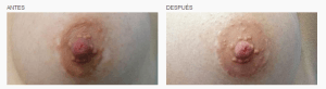 Micropigmentación de areolas mamas en Logia Barcelona