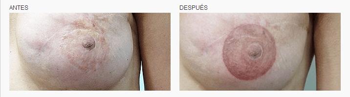 tatuaje oncológico médico Micropigmentación de areolas mamas en Logia Barcelona