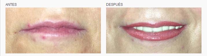 micropigmentación de labios en Logia Barcelona