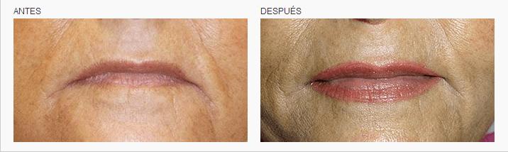 micropigmentacion de labios en Logia Barcelona
