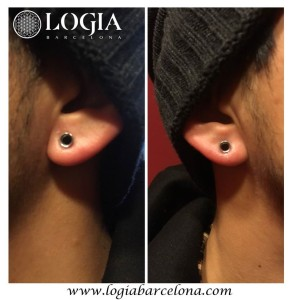 dilatación piercing