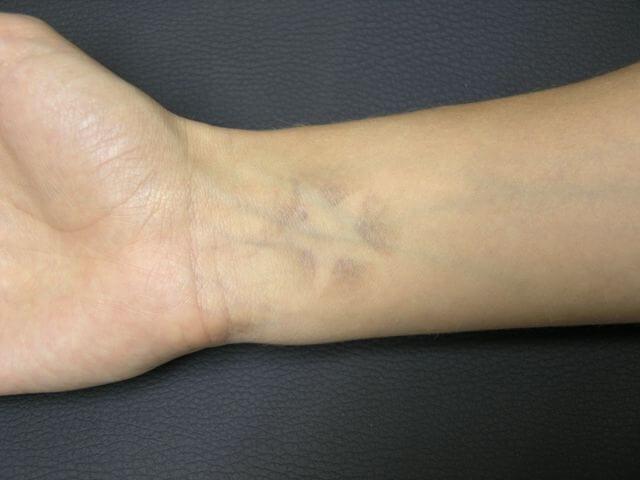 Métodos para eliminar tatuajes
