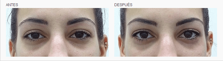 micropigmentacion waterline ojos logia barcelona