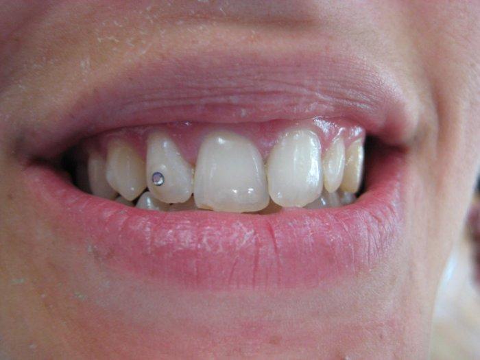 ¿Qué es el piercing dental?