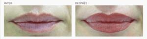logia-barcelona-micropigmentación-labios-1