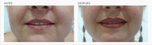 logia-barcelona-micropigmentación-labios-4