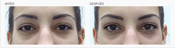 micropigmentacion ojos tatuaje linea de pestañas logia barcelona