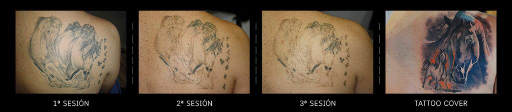 eliminación de tatuajes en Hospitalet