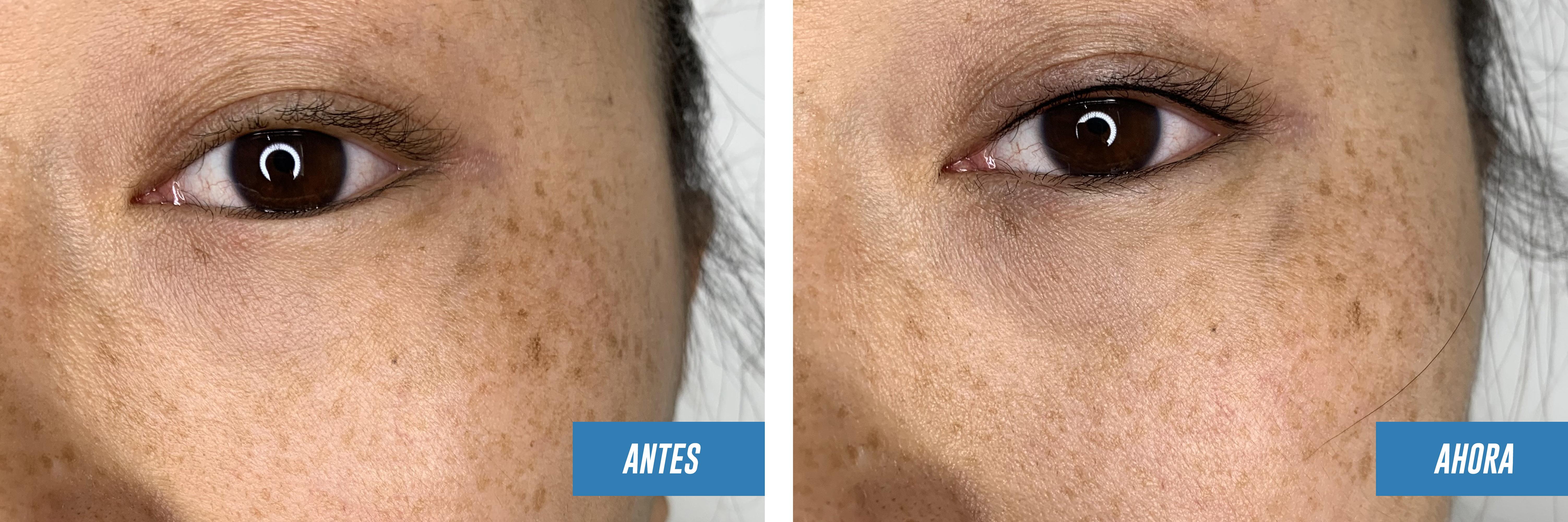 micropigmentacion de ojos, eyeliner permanente