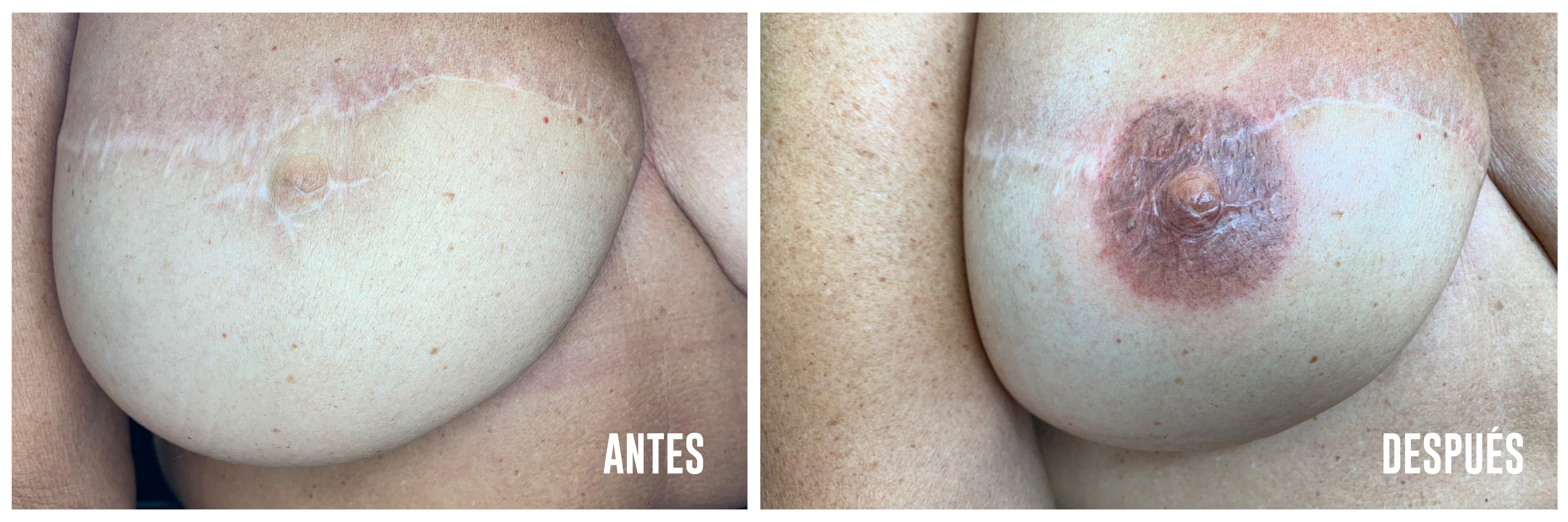Antes-después tatuaje areolas pezon - Logia Barcelona