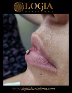 Piercing-Microdermal-labio-Logia-Barcelona-Mysha