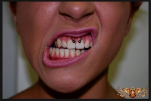 piercing frenillo 1
